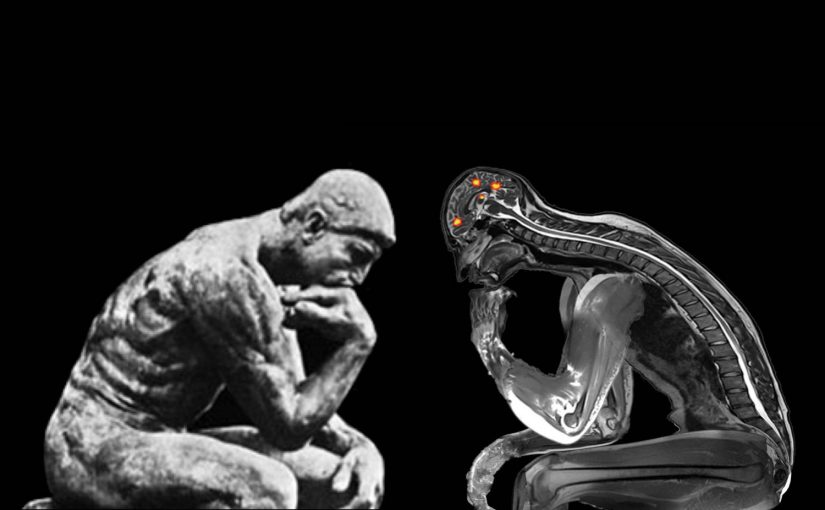A picture of the thinker statue beside a functional MRI of someone in the thinker pose.